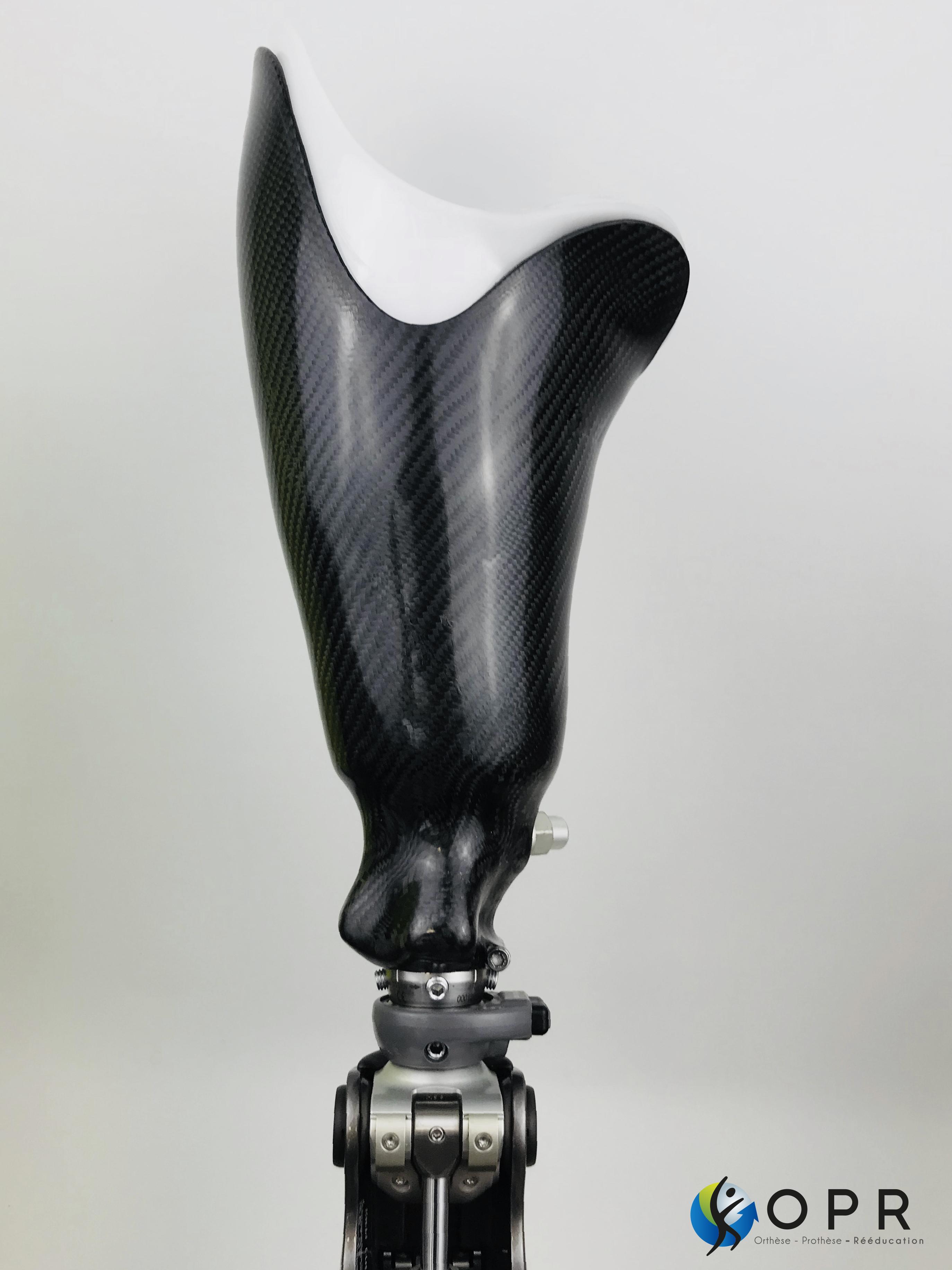 emboiture de cuisse pour prothèse fémorale avec silicone et carbone à Rennes et Avranches en normandie