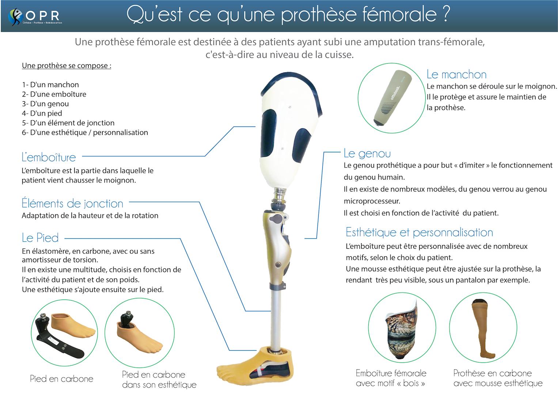 infographie qu'est ce qu'une prothèse fémorale de cuisse après amputation what is prosthetic french france orthodic orthopédie avranches normandie