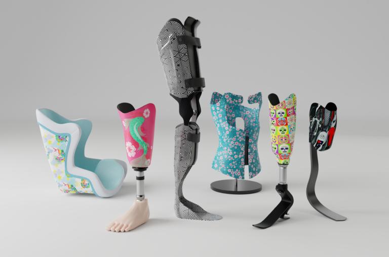 u exist personnalisation des prothèses de jambe et de cuisse chez orthese prothese reeducation en bretagne et en normandie