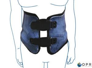 corset thermoformé, sur mesure par orthoprothésiste à Rennes et à Avranches, departements 50
