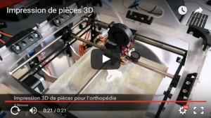 Impression 3D : OPR mêle nouvelles technologies et orthopédie