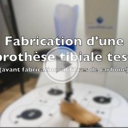 fabrication d'une prothese tibiale par opr, orthoprothesiste à rennes vidéo