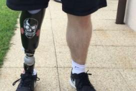 prothèse personnalisé à la jambe