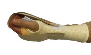 Orthèse thermoformée dynamique de flexion par enroulement