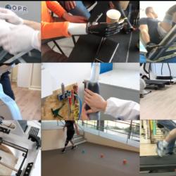 OPR à deux ans et demi vidéo d'exploit de patient en orthopédie bretagne et normandieæ