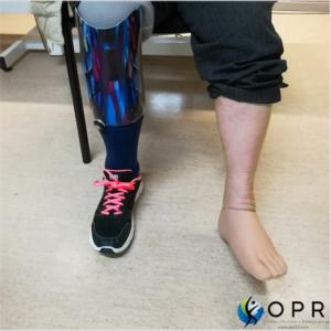 Prothèse esthétique en silicone pour pieds et doigts de pieds coupés agénésie partielle, amputation partielle du pied orthopédie en bretagne et normandie