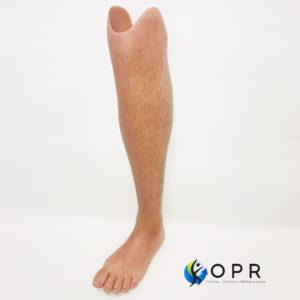 Prothèse esthétique en silicone pour agénésie partielle, amputation partielle du pied orthopédie en bretagne et normandie