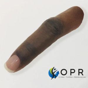 Prothèse de doigt esthétique en silicone pour agénésie partielle, amputation partielle orthopédie à Rennes et caen