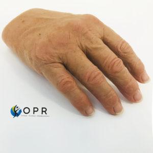 Prothèse de main pour doigts coupés. Esthétique en silicone pour agénésie partielle, amputation partielle orthopédie à Rennes et caen
