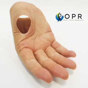Prothèse de main esthétique en silicone pour agénésie partielle, amputation partielle orthopédie en bretagne et normandie