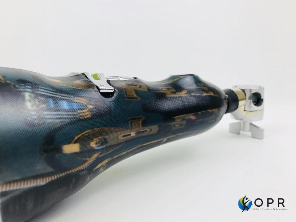 prothèse de bras pour batterie en bretagne orthèse prothèse rééducation rennes normandie