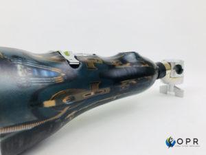 prothèse de bras pour faire de la batterie amputé en bretagne orthèse prothèse rééducation rennes normandie