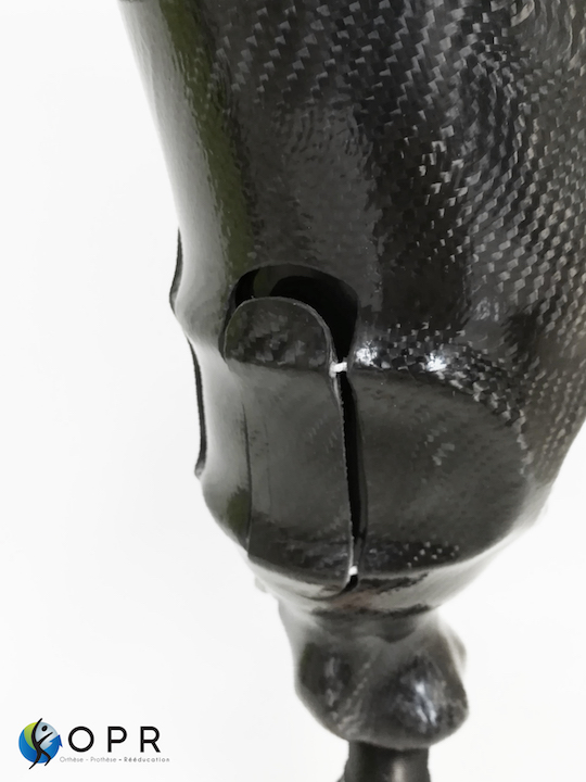 site prothese de jambe amputé avec systeme de fixation BOA près à Rennes (35) et Avranches (50)