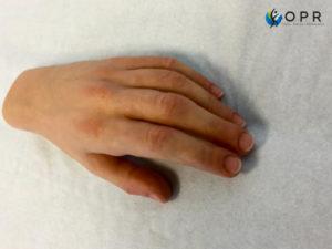 Prothèse de main esthétique en silicone pour doigts coupés. Agénésie partielle, amputation partielle orthopédie à Rennes et caen
