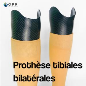 Prothéses tibiales bilatérales en carbone avec mousse esthétique classique
