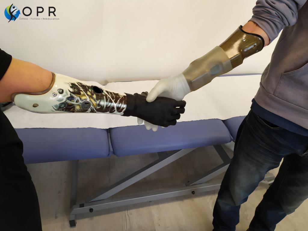 rencontre des mains bioniques michelangelo de ottobock et de la main i-limb ultra de ossur en bretagne chez opr et en normandie
