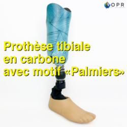 Prothèse tibiale en carbone avec motif personnalisé «Palmier» U-exist