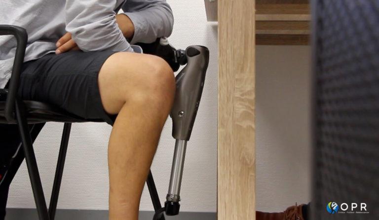 patient amputé fémoral assis chez un orthoprothésiste pour des douleurs liées au moignon