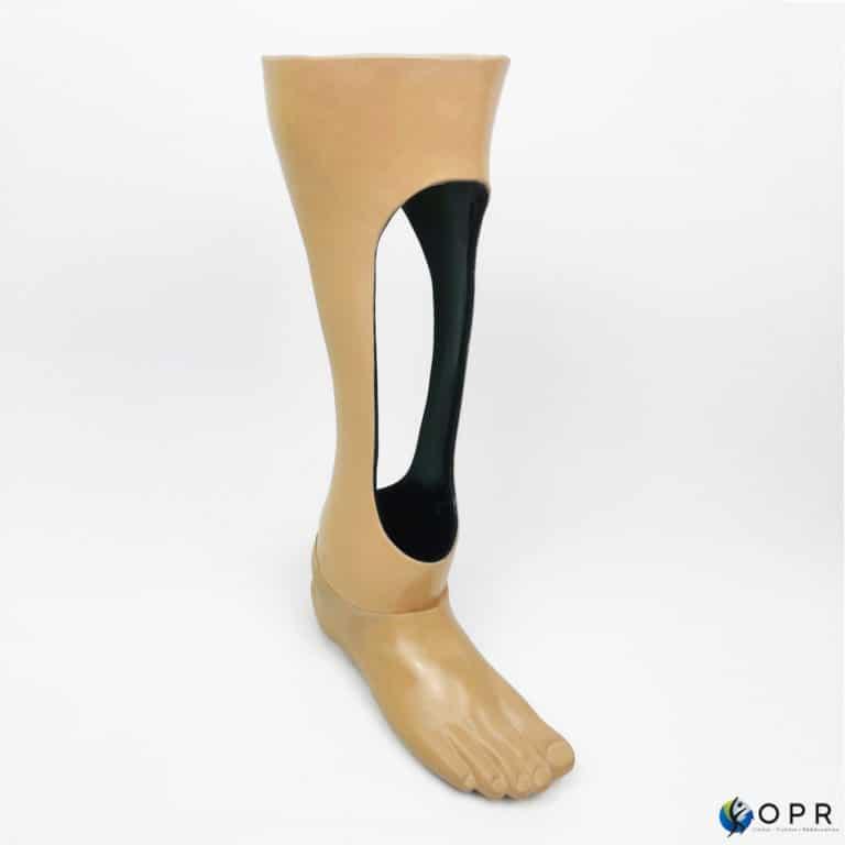 prothese pour amputation de type syme pour uen aputation au niveau du talon par les prothésistes en bretagne et en normandie