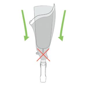 L'accroche dystal peut etre bloqué a cause d'un corp etranger au fond de l'emboiture. A tester avant d'appeler son orthoprothésiste