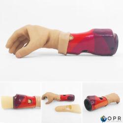 prothese myoelectrique michelangelo d'ottobock pour une amputation du bras de nicolas huchet ou de la main adans les cabinets de saint lo rennes ou avranches en bretagne et en normandie