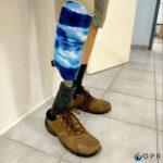 prothèse de jambe tibiale en carbone avec une personnalisation ocean u-exist en bretagne et en normandie