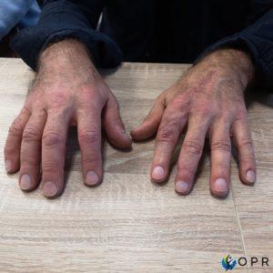 prothèse esthétique silicone haute définition pour amputation des doigts, en bretagne chez votre prothésiste de rennes ou en normandie a saint lo et a avranches
