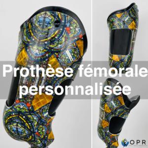 Prothèse fémorale au motif vitrail