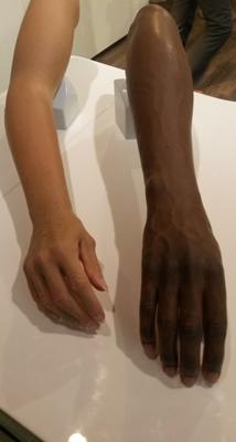 Prothèse avec esthétique silicone