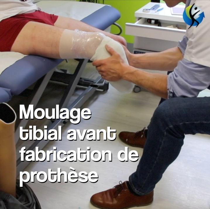 moulage tibial orthopédie pour prothèse de jambe bretagne et normandie