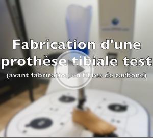 [Vidéo] Découvrez comment sont réalisées nos prothèses (Vidéo 1/2)