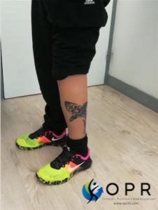 prothèse esthétique Aqualeg réalisée par opr orthese prothese reeducation bretagne et normandie , personalisation silicone avec tatouage
