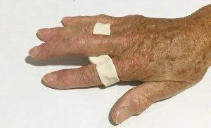 rodorthèse, attelle de doigt sur mesure proche de villedieu les poëles en normandie et en Bretagne 35