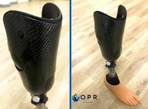 prothese tibiale en carbone et silicone à rennes en ile et vilaine et en normandie, prothèse de jambe après amputation