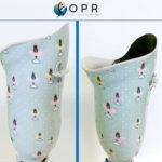 prothese personnalisé pour fille ou pour femme design en normandie et en bretagne pour le tibia
