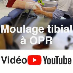 [Vidéo] Moulage tibial en orthopédie pour la fabrication d'une prothèse