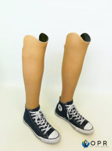 prothèses bilatérales en carbone avec esthétique aqualeg en bretagne