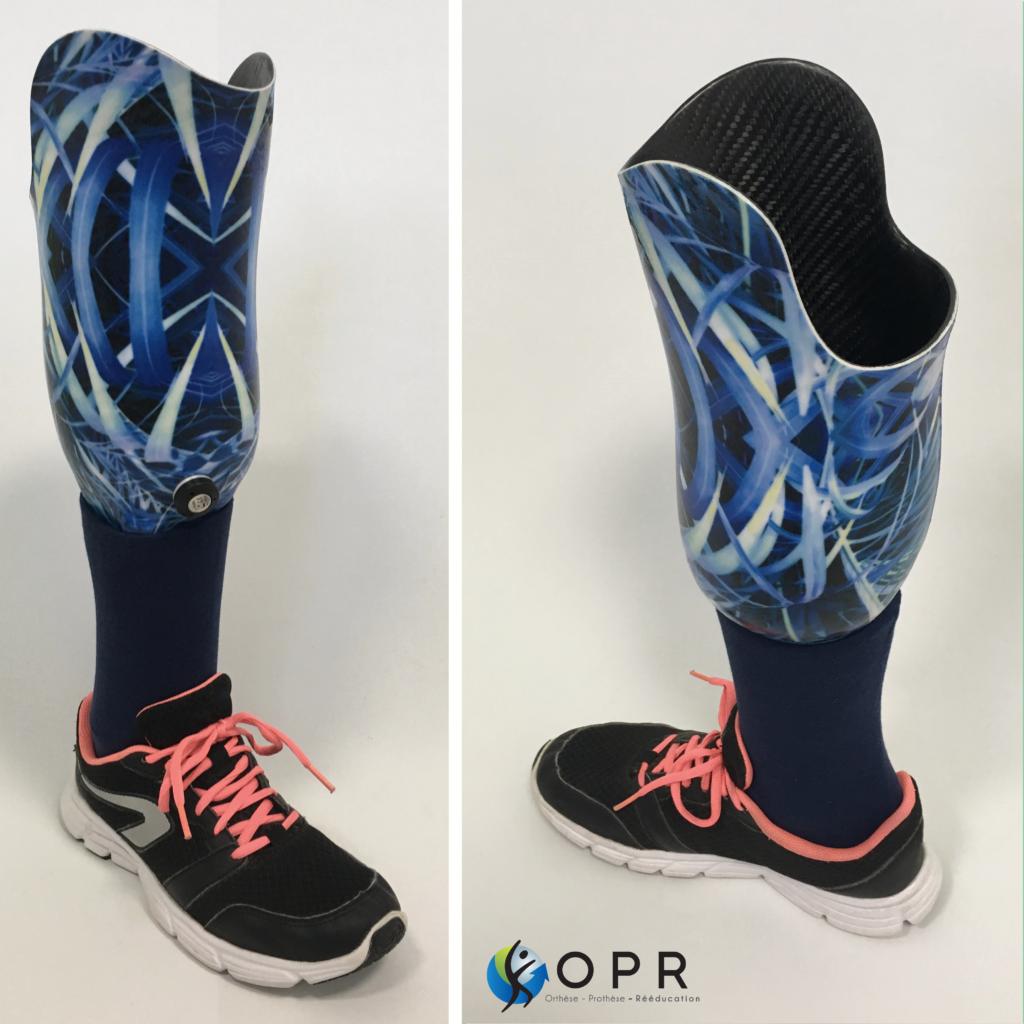prothèse de jambe pour le tibia personnalisé en bretagne et en normandie