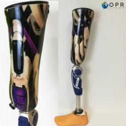 prothèse de genou personnalisée et réalisée en bretagne près de rennes et dans notre second cabinet à Avranches