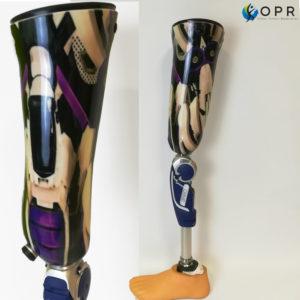 Prothèse fémorale dr type Gritti personnalisée avec double stratification