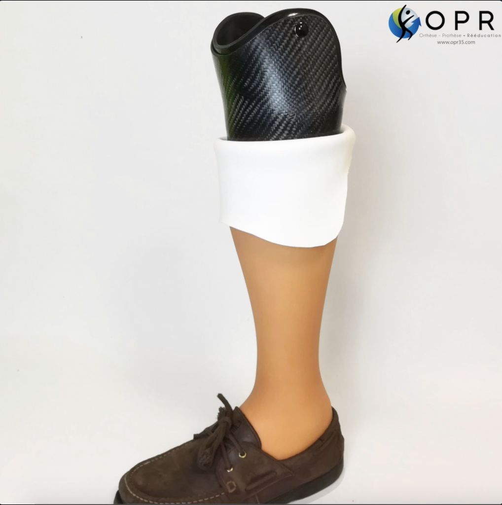 prothèse de tibia invisible avec revetement aqualeg en silicone réalisée par Orthèse prothèse rééducation, orthoprothésistes à Rennes et avranches en normandie