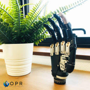 Réception de la main myoéléctrique I-Limb Ultra de Touch Bionics