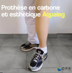Prothèse en carbone avec esthétique Aqualeg