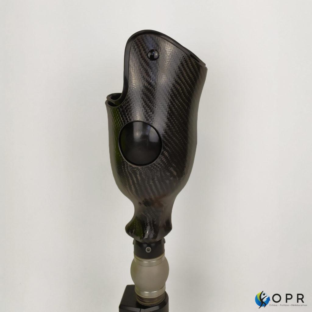prothèse de jambe tibiale en carbone avec double fur carbone-souple pour soulager les douleurs dans l'emboiture et dans la prothèse en bretagne à rennes et en normandie à Saint-Lô et Avranches