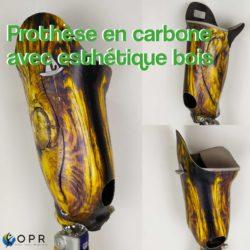 prothèse fémorale de cuisse en carbone avec esthétique en bois des motifs u-exist