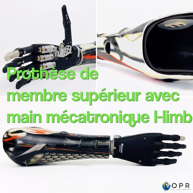 Prothèse de membre supérieur avec main mécatronique I-limb