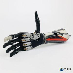 prothèse de bras en carbone avec une prothese de main mecatronique haute technologie pour les personnes amputés au poignet de saint lô, avranches et rennes en bretagne et en normandie