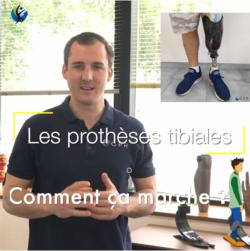 Comment ça marche ? #1 Les prothèses tibiales