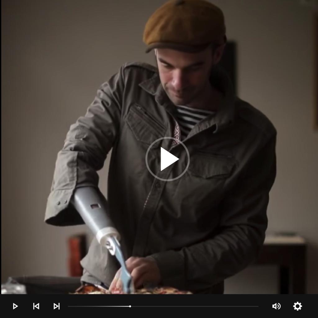 Nicolas huchet, Bionico de l'assocition Myhumankit dans le reportage l'homme bionique sur france 2