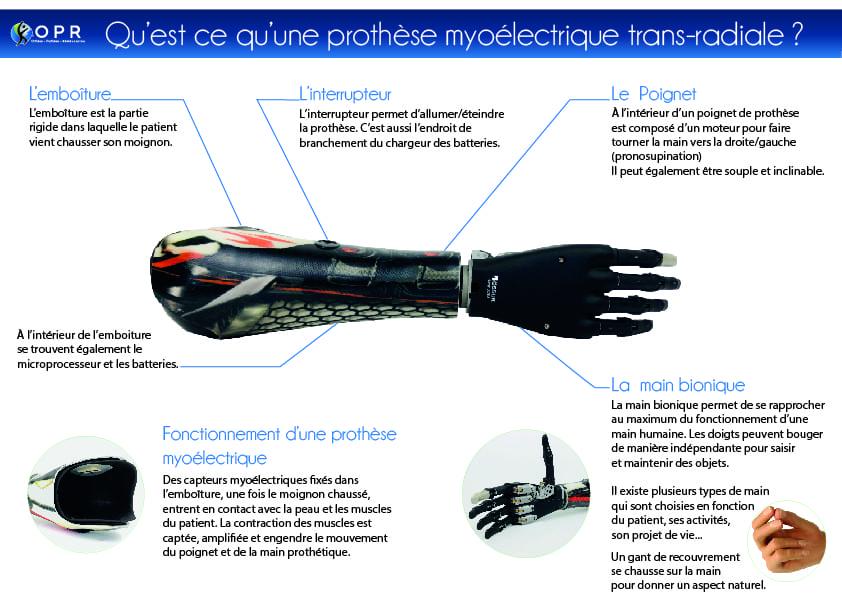 Infographie qu'est ce qu'une prothèse de membre supérieur ou une prothèse de main aussi appelé prothèse de rbas ou de poignet. Nous sommes prothésistes en bretagne a rennes et en normandie a Avranches et Saint Lo